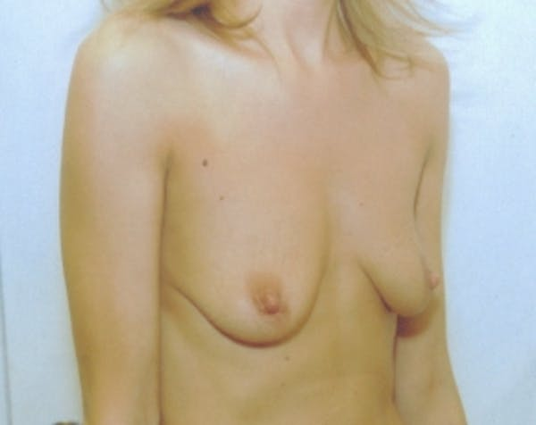 Breast Augmentation Gallery - Patient 5883272 - Image 1