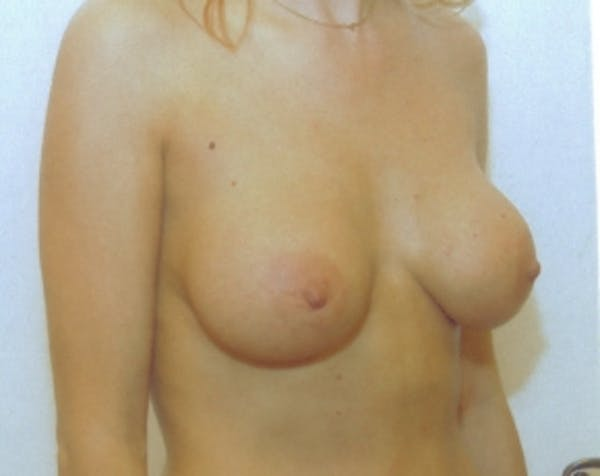 Breast Augmentation Gallery - Patient 5883272 - Image 2