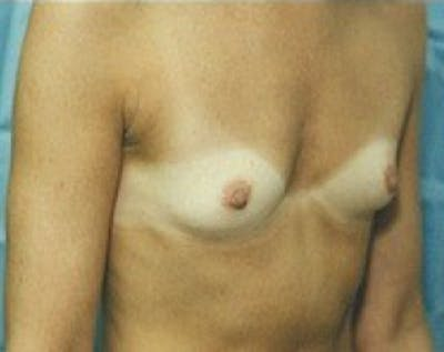 Breast Augmentation Gallery - Patient 5883279 - Image 1