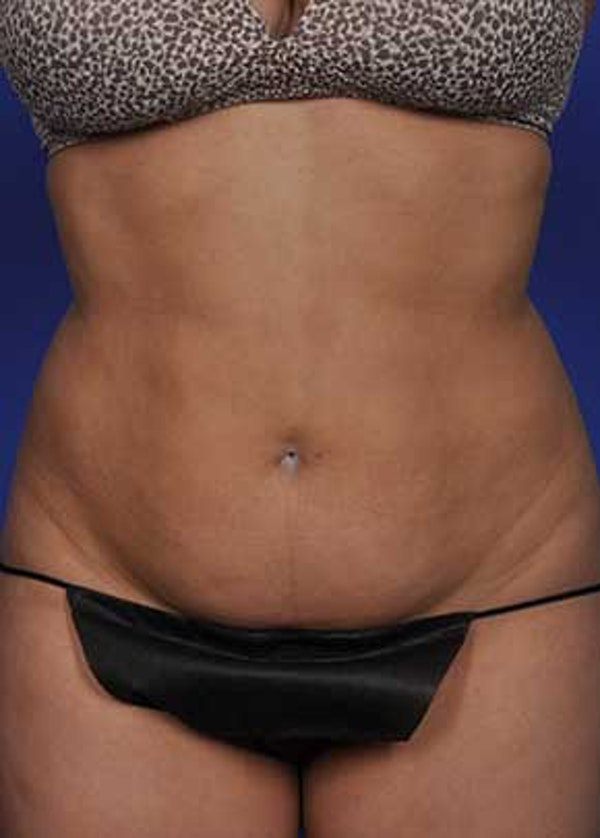 Liposuction and Smartlipo Gallery - Patient 5883278 - Image 1