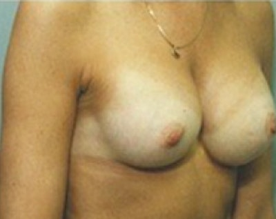 Breast Augmentation Gallery - Patient 5883279 - Image 2