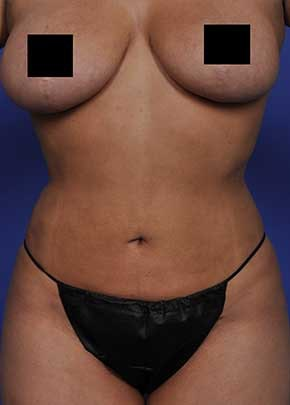 Liposuction and Smartlipo Gallery - Patient 5883278 - Image 2