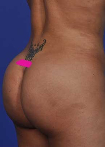Liposuction and Smartlipo Gallery - Patient 5883282 - Image 2