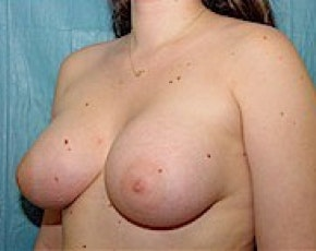 Breast Augmentation Gallery - Patient 5883284 - Image 2