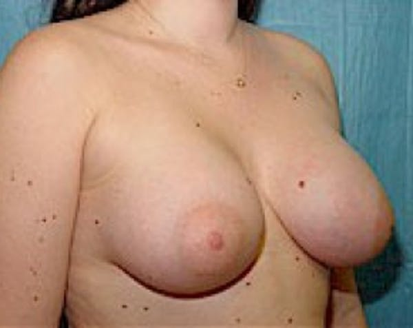 Breast Augmentation Gallery - Patient 5883284 - Image 4