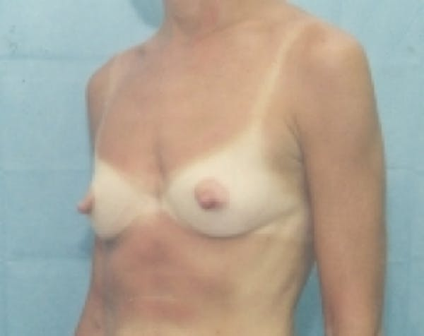Breast Augmentation Gallery - Patient 5883287 - Image 1