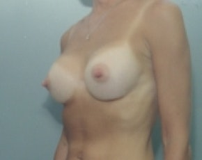 Breast Augmentation Gallery - Patient 5883287 - Image 2