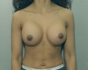 Breast Augmentation Gallery - Patient 5883291 - Image 2