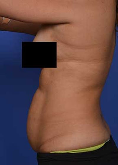 Liposuction and Smartlipo Gallery - Patient 5883296 - Image 1