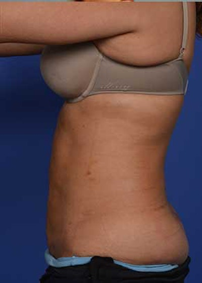 Liposuction and Smartlipo Gallery - Patient 5883296 - Image 2