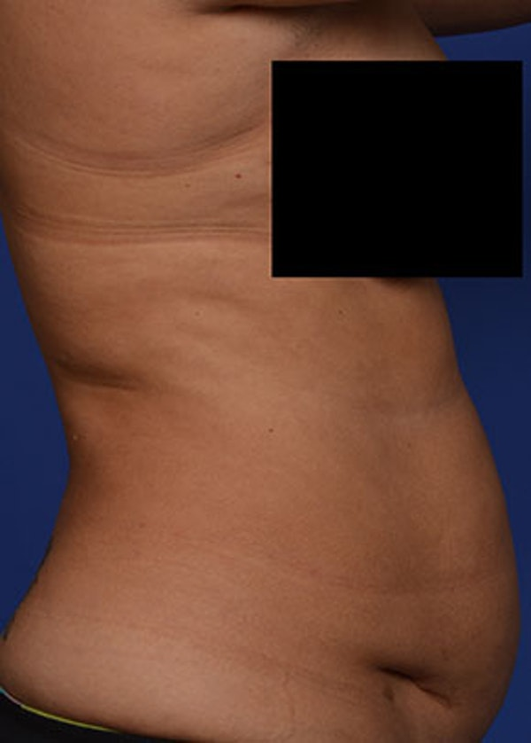 Liposuction and Smartlipo Gallery - Patient 5883296 - Image 3