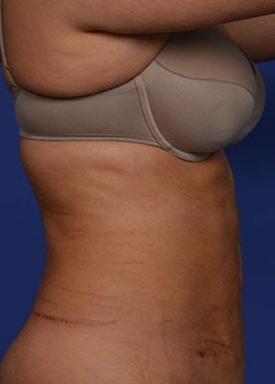 Liposuction and Smartlipo Gallery - Patient 5883296 - Image 4