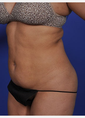 Liposuction and Smartlipo Gallery - Patient 5883303 - Image 1