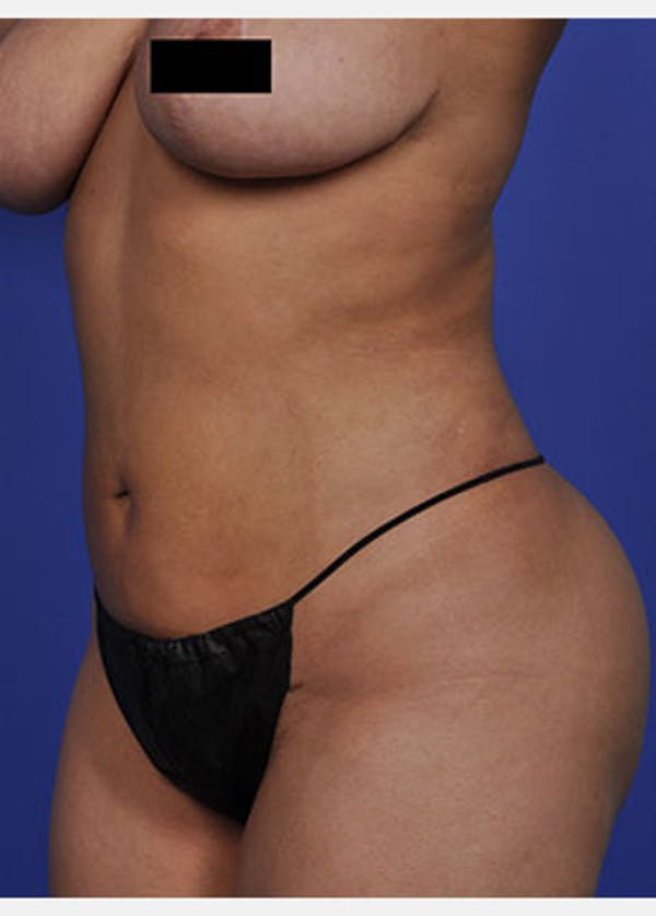 Liposuction and Smartlipo Gallery - Patient 5883303 - Image 2