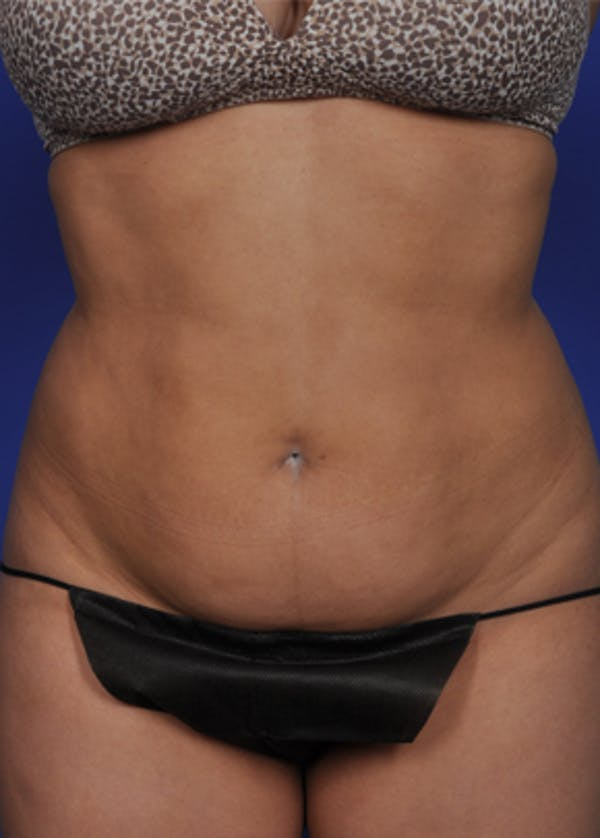 Liposuction and Smartlipo Gallery - Patient 5883303 - Image 3