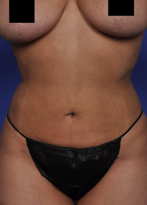 Liposuction and Smartlipo Gallery - Patient 5883303 - Image 4