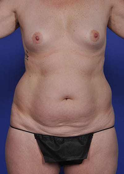 Liposuction and Smartlipo Gallery - Patient 5883305 - Image 1