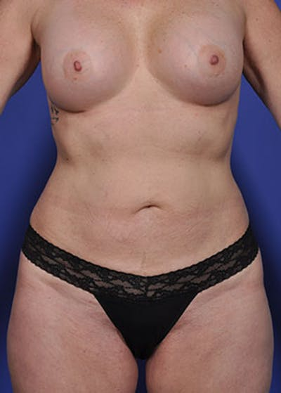 Liposuction and Smartlipo Gallery - Patient 5883305 - Image 9