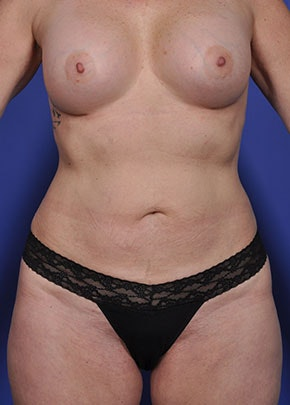 Liposuction and Smartlipo Gallery - Patient 5883305 - Image 2