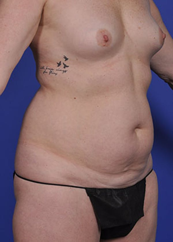 Liposuction and Smartlipo Gallery - Patient 5883305 - Image 3