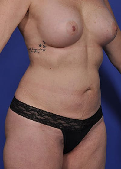 Liposuction and Smartlipo Gallery - Patient 5883305 - Image 4