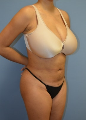 Liposuction and Smartlipo Gallery - Patient 5883308 - Image 2
