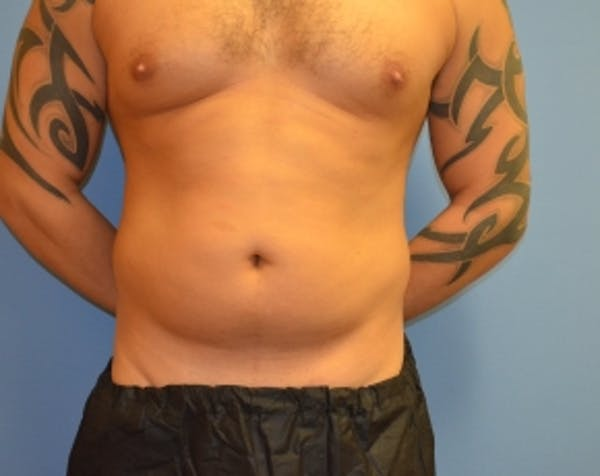 Liposuction and Smartlipo Gallery - Patient 5883310 - Image 1