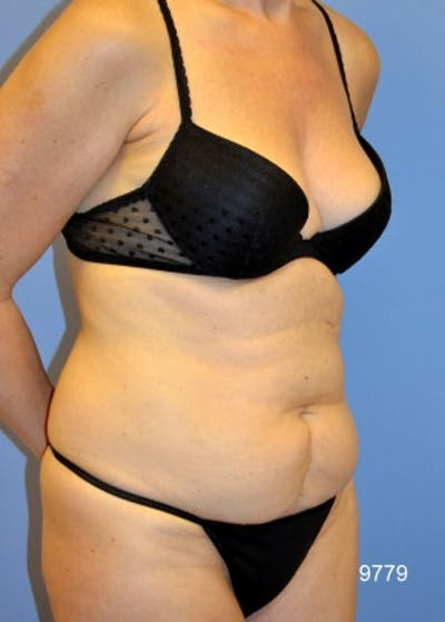 Liposuction and Smartlipo Gallery - Patient 5883313 - Image 1