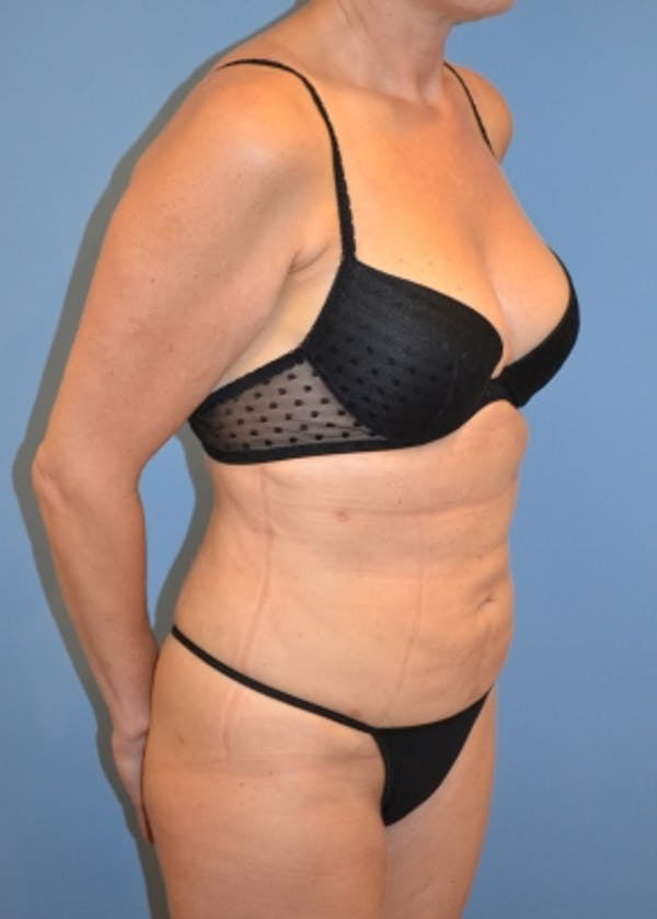 Liposuction and Smartlipo Gallery - Patient 5883313 - Image 2