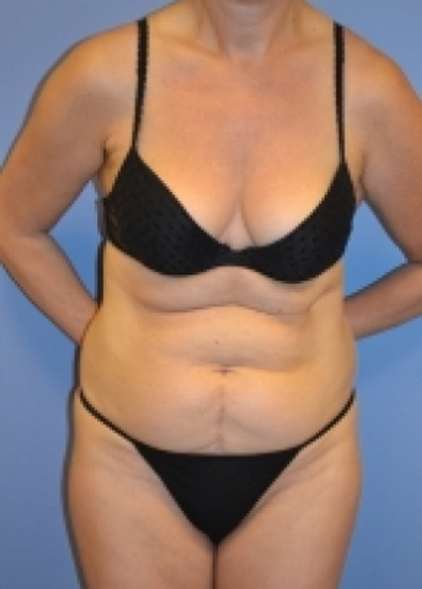 Liposuction and Smartlipo Gallery - Patient 5883313 - Image 3