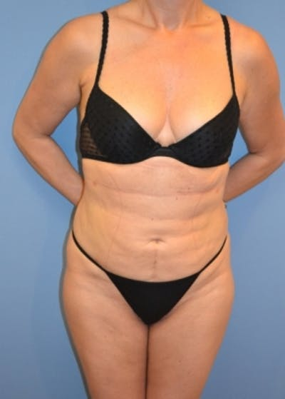 Liposuction and Smartlipo Gallery - Patient 5883313 - Image 4