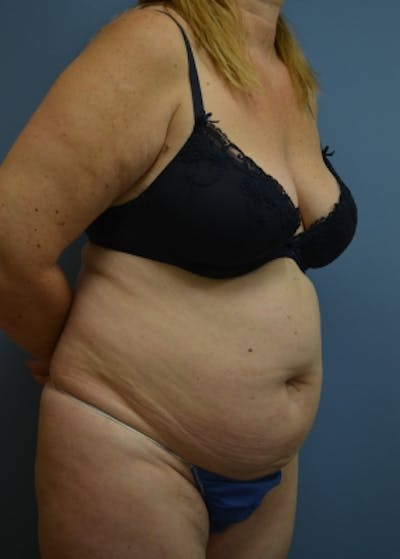 Liposuction and Smartlipo Gallery - Patient 5883314 - Image 1