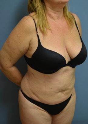 Liposuction and Smartlipo Gallery - Patient 5883314 - Image 2
