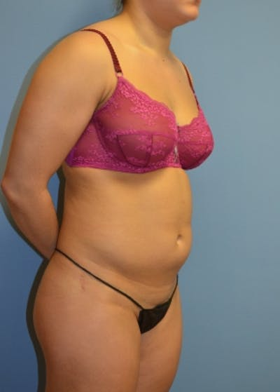 Liposuction and Smartlipo Gallery - Patient 5883316 - Image 1