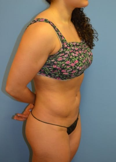 Liposuction and Smartlipo Gallery - Patient 5883316 - Image 15