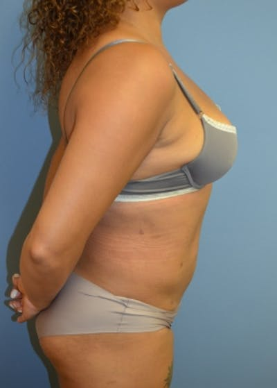 Liposuction and Smartlipo Gallery - Patient 5883317 - Image 16