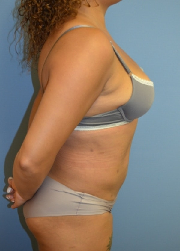 Liposuction and Smartlipo Gallery - Patient 5883317 - Image 2