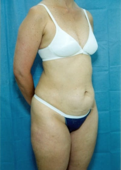 Liposuction and Smartlipo Gallery - Patient 5883318 - Image 1
