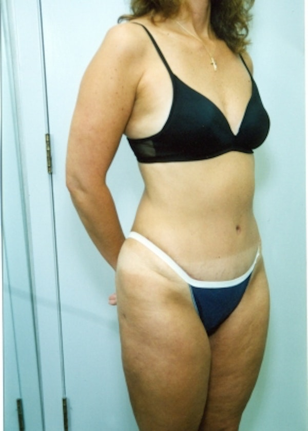 Liposuction and Smartlipo Gallery - Patient 5883318 - Image 2