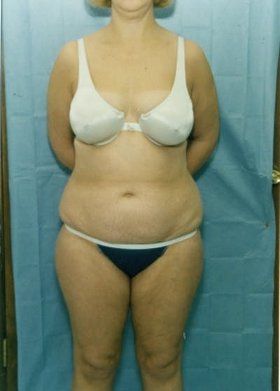 Liposuction and Smartlipo Gallery - Patient 5883320 - Image 1