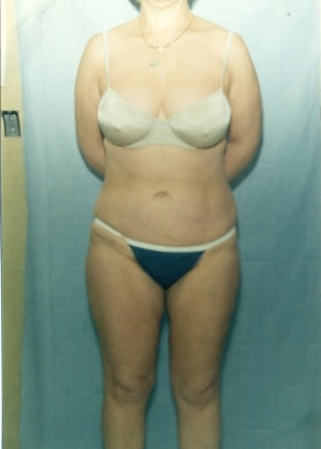Liposuction and Smartlipo Gallery - Patient 5883320 - Image 2