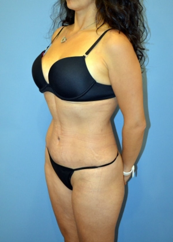 Tummy Tuck Gallery - Patient 5883321 - Image 2