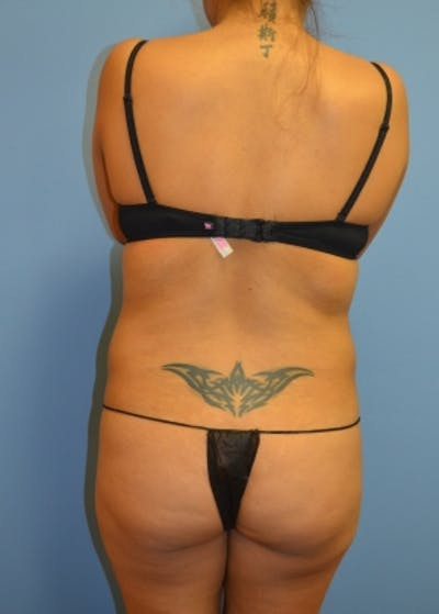 Liposuction and Smartlipo Gallery - Patient 5883322 - Image 1