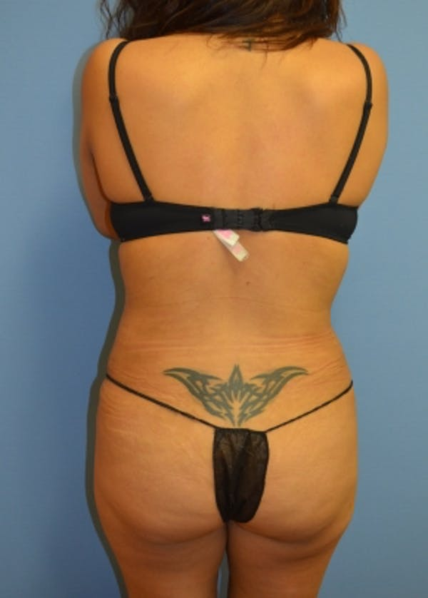 Liposuction and Smartlipo Gallery - Patient 5883322 - Image 2