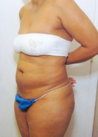 Tummy Tuck Gallery - Patient 5883323 - Image 1