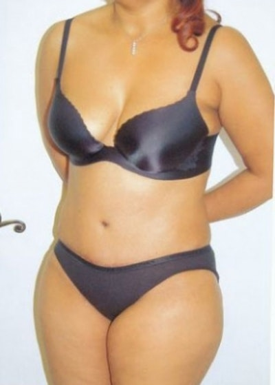 Tummy Tuck Gallery - Patient 5883323 - Image 2