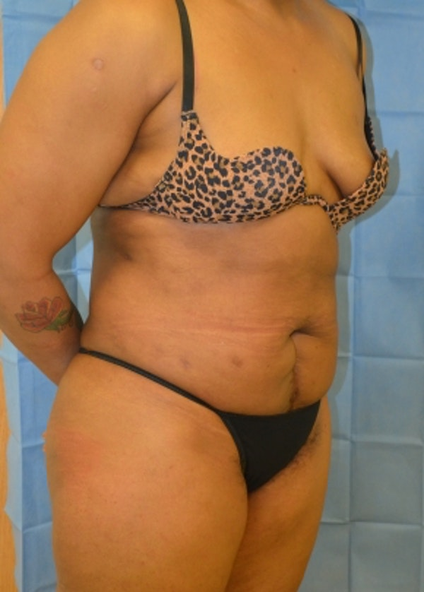 Liposuction and Smartlipo Gallery - Patient 5883324 - Image 2