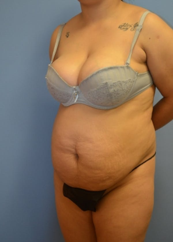 Tummy Tuck Gallery - Patient 5883325 - Image 1