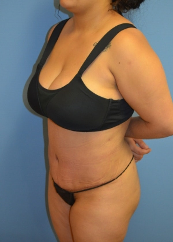 Tummy Tuck Gallery - Patient 5883325 - Image 2