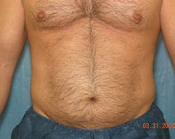 Liposuction and Smartlipo Gallery - Patient 5883326 - Image 1